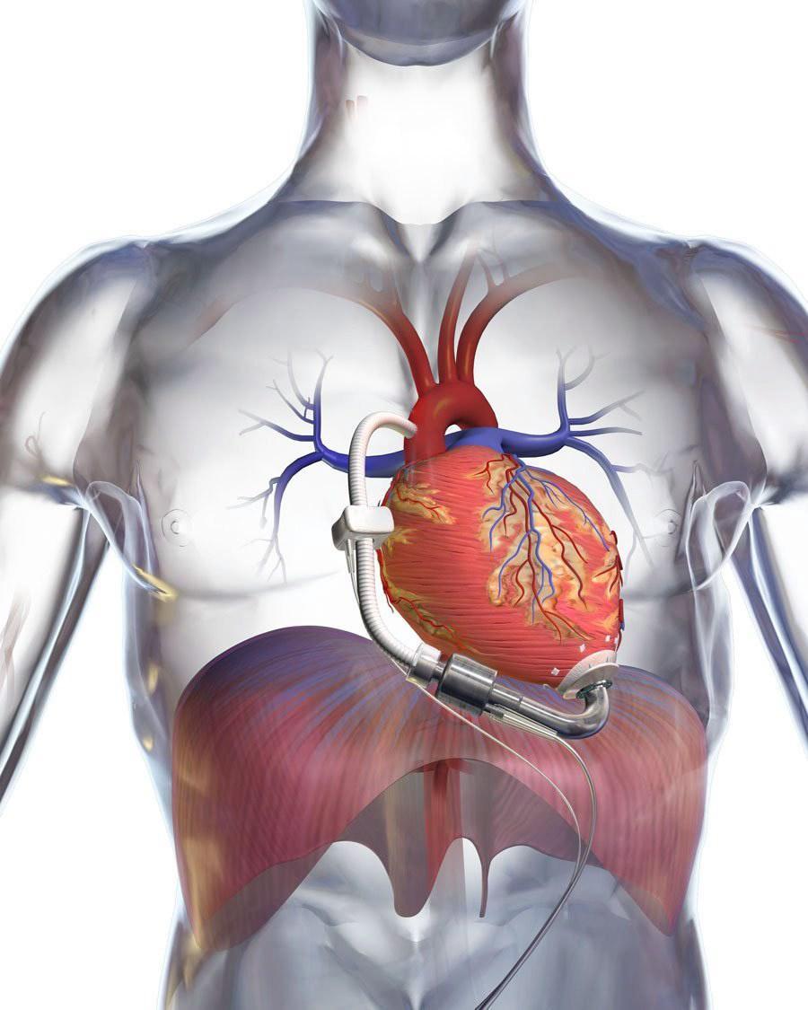 Създават човешко сърце в лаборатория
