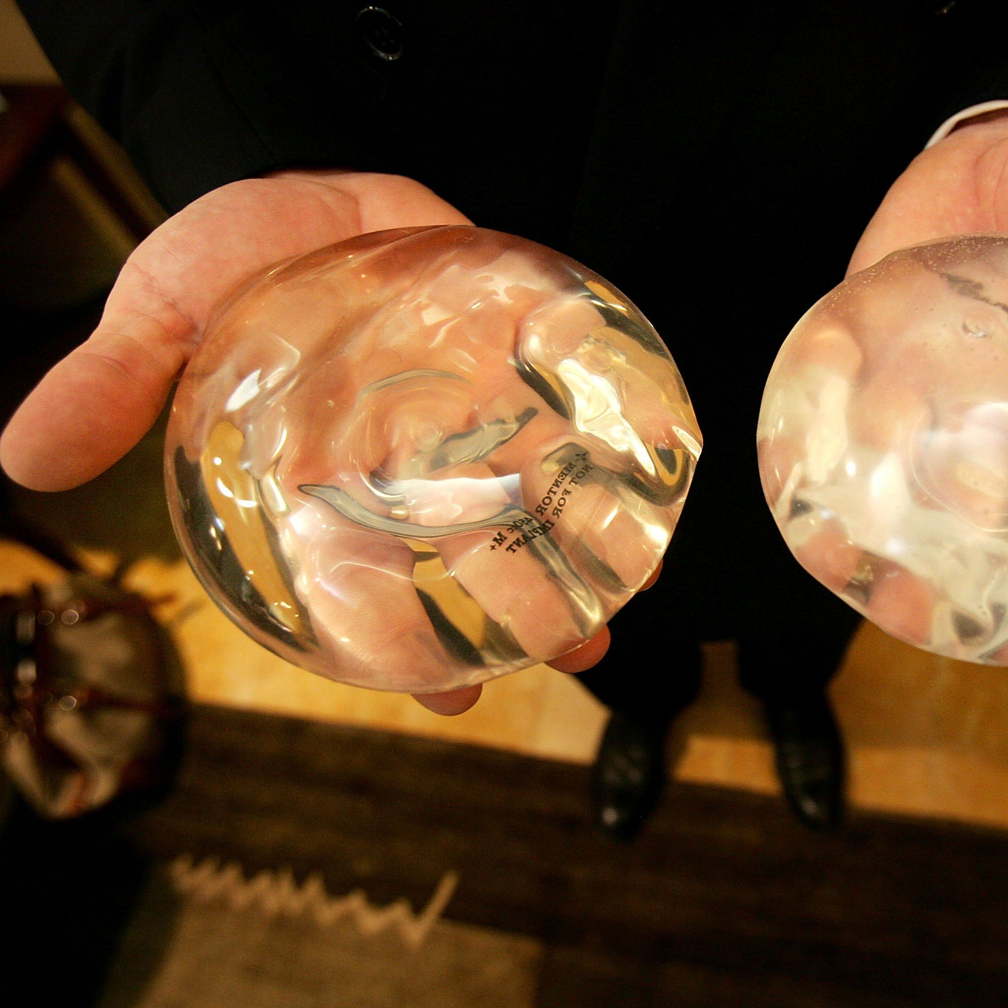 Паниката заради дефектни силиконови импланти в Европа
