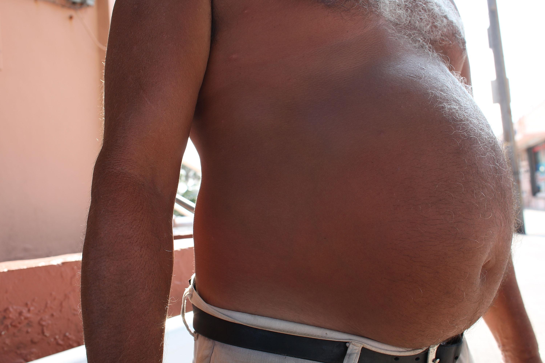 Затлъстяването при мъжете влияе неблагоприятно на зачеването