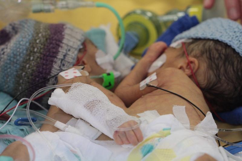 """""""Пирогов"""": Разделянето на сиамските близнаци е невъзможно"""