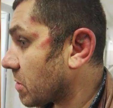 Брутален случай на полицейско насилие в София