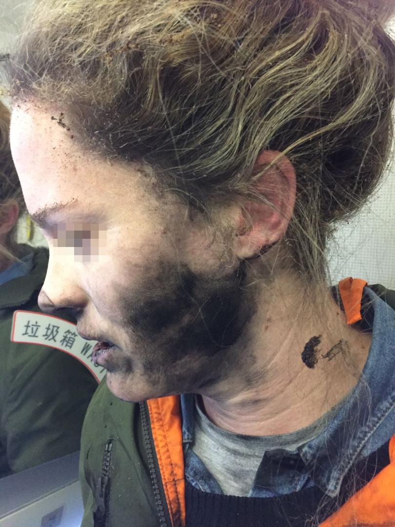 Слушалки избухнаха върху главата на жена