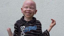 Режат телата на танзанийски деца албиноси, за да варят отвари за късмет