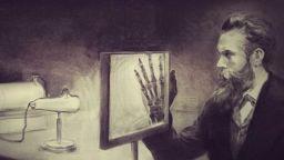 Съпругата на проф. Рентген се страхувала от откритието му