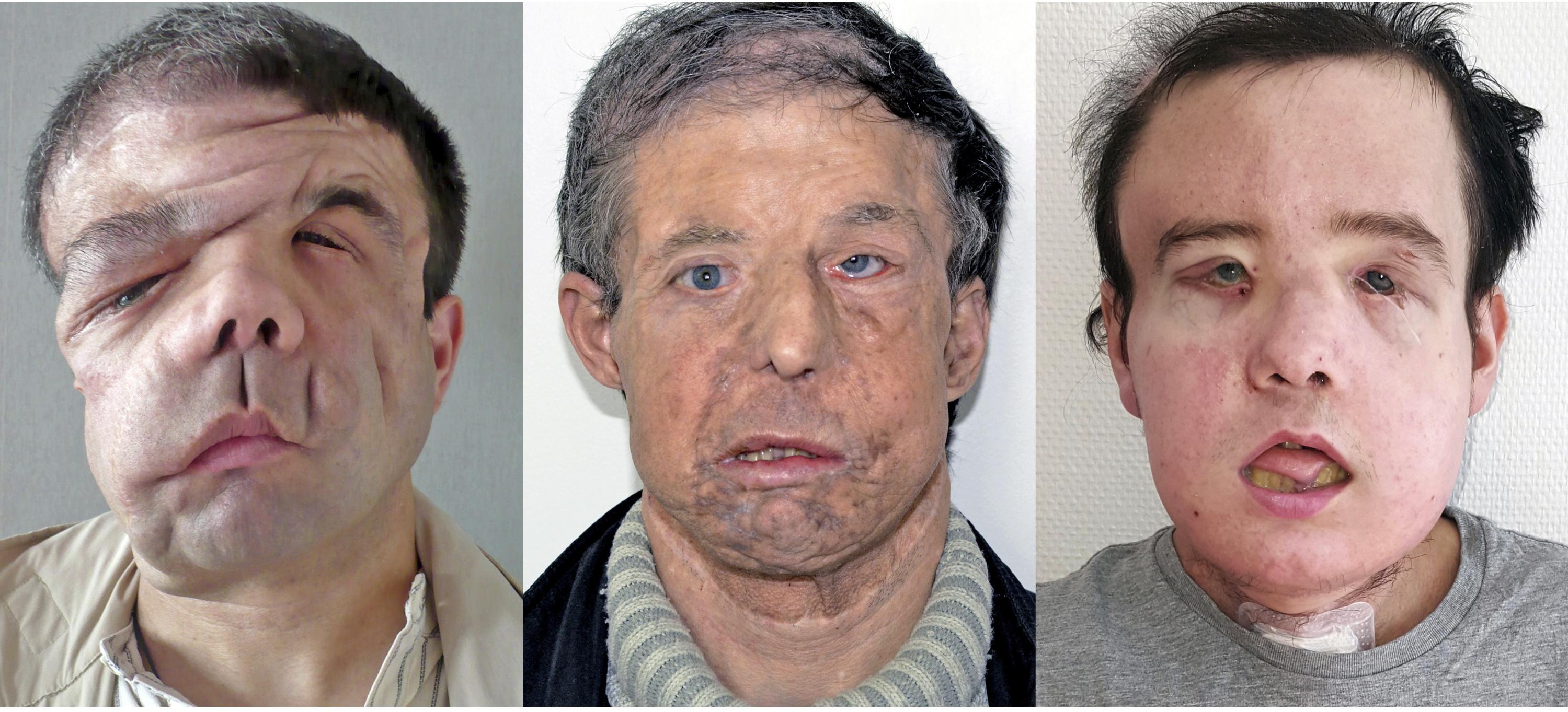Французин е първият с две трансплантации на лице