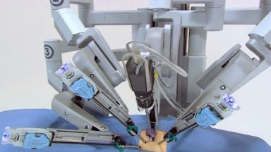 Уникална операция с робот извършиха в Плевен