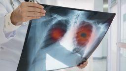 България е на първо място по заболеваемост от белодробни болести