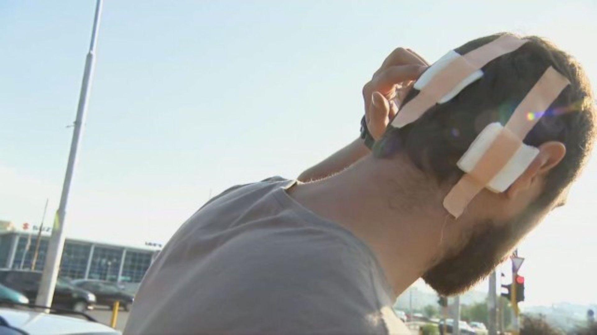 Пострадалият мъж е с множество наранявания по главата
