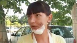Млада жена, блъсната на пешеходна пътека, се страхува, че ще потулят случая