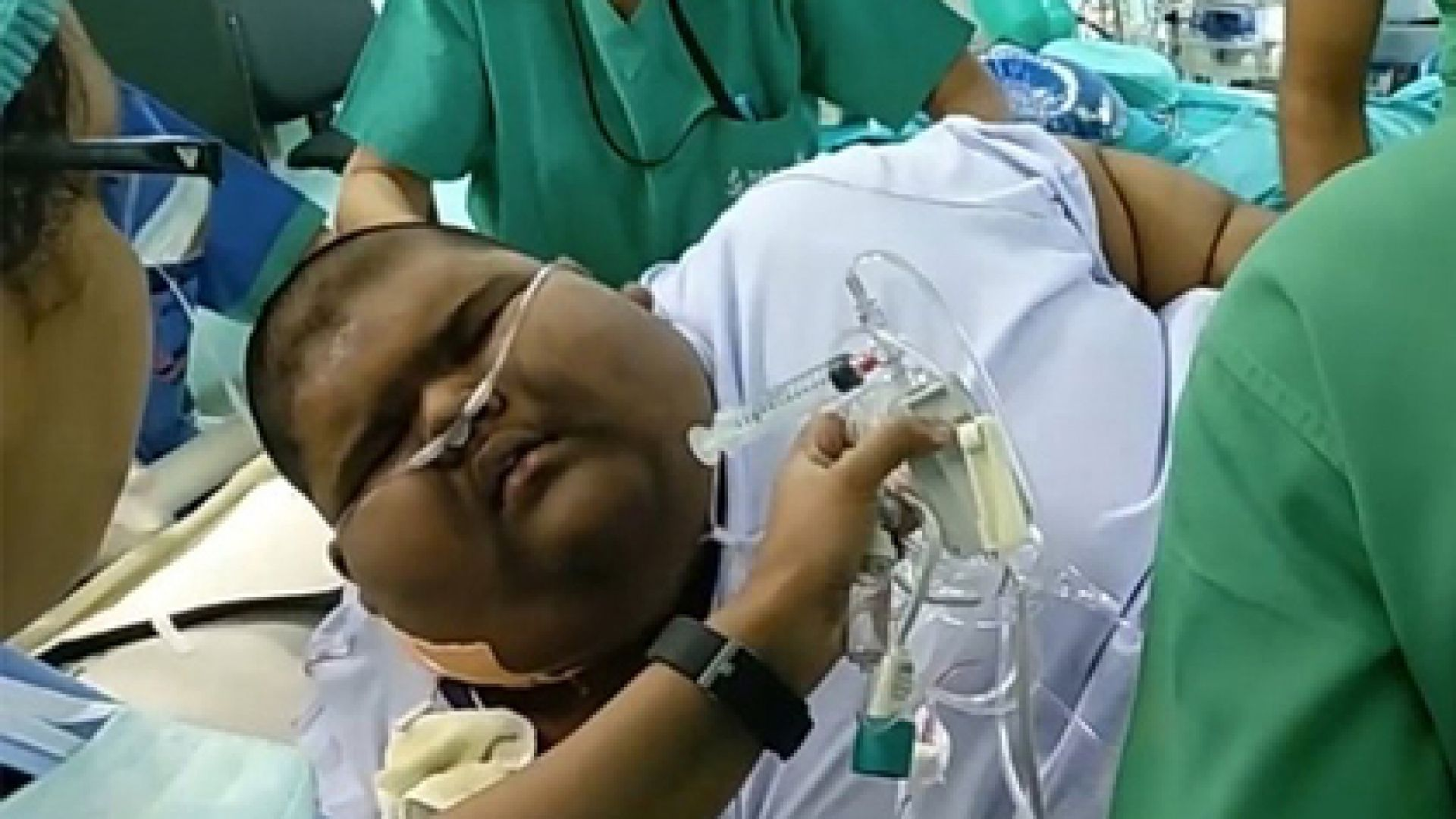 Най-пълното дете в света отслабна с 65 кг