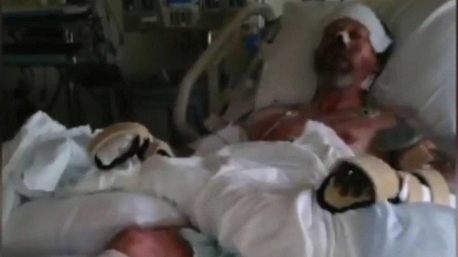 Ампутираха краката и част от ръцете на мъж заради инфекция от куче (видео)