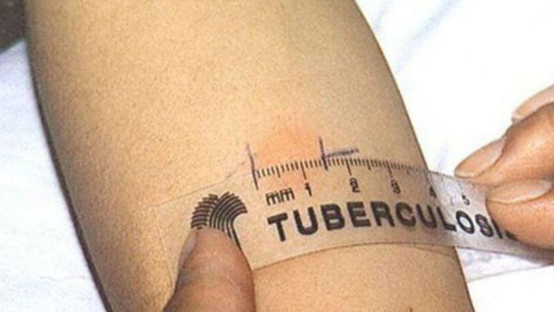 Преглежат безплатно за риск от туберкулоза в Пловдив