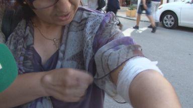 Ротвайлер нахапа жена в центъра на Бургас