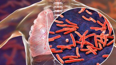 СЗО: Най-страшната инфекциозна болест в света е туберкулозата