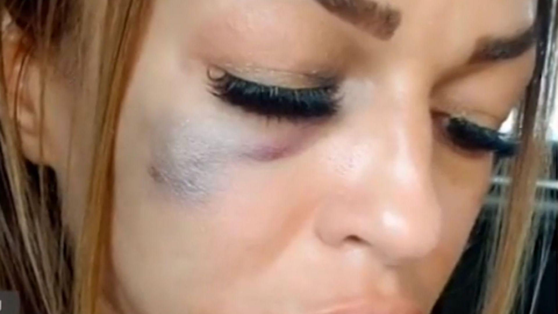 Жена от Сандански твърди, че е била брутално пребита на