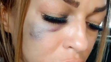 Жена обвини полицай, че я е пребил, семейството му отрича