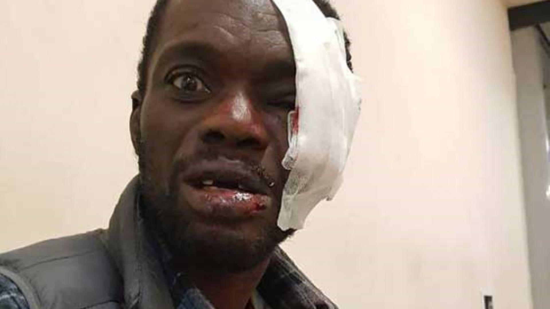Британски гражданин е станал жертва на тежък побой от страна