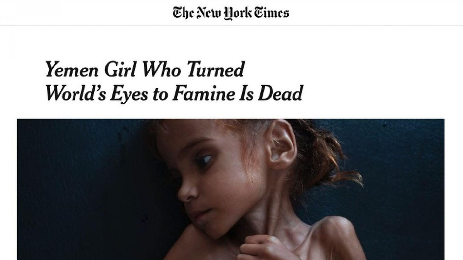 Почина символът на хуманитарната криза в Йемен