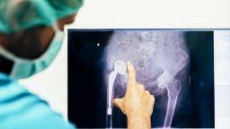 Implant Files: Дефектни протези убиват десетки хиляди и увреждат милиони пациенти по цял свят