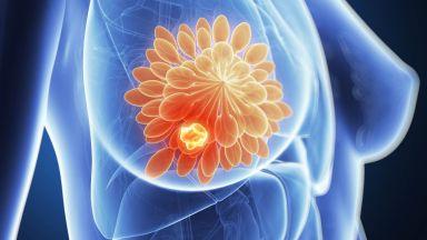 Кръвен тест ще определя най-подходящото лечение на рака на гърдата