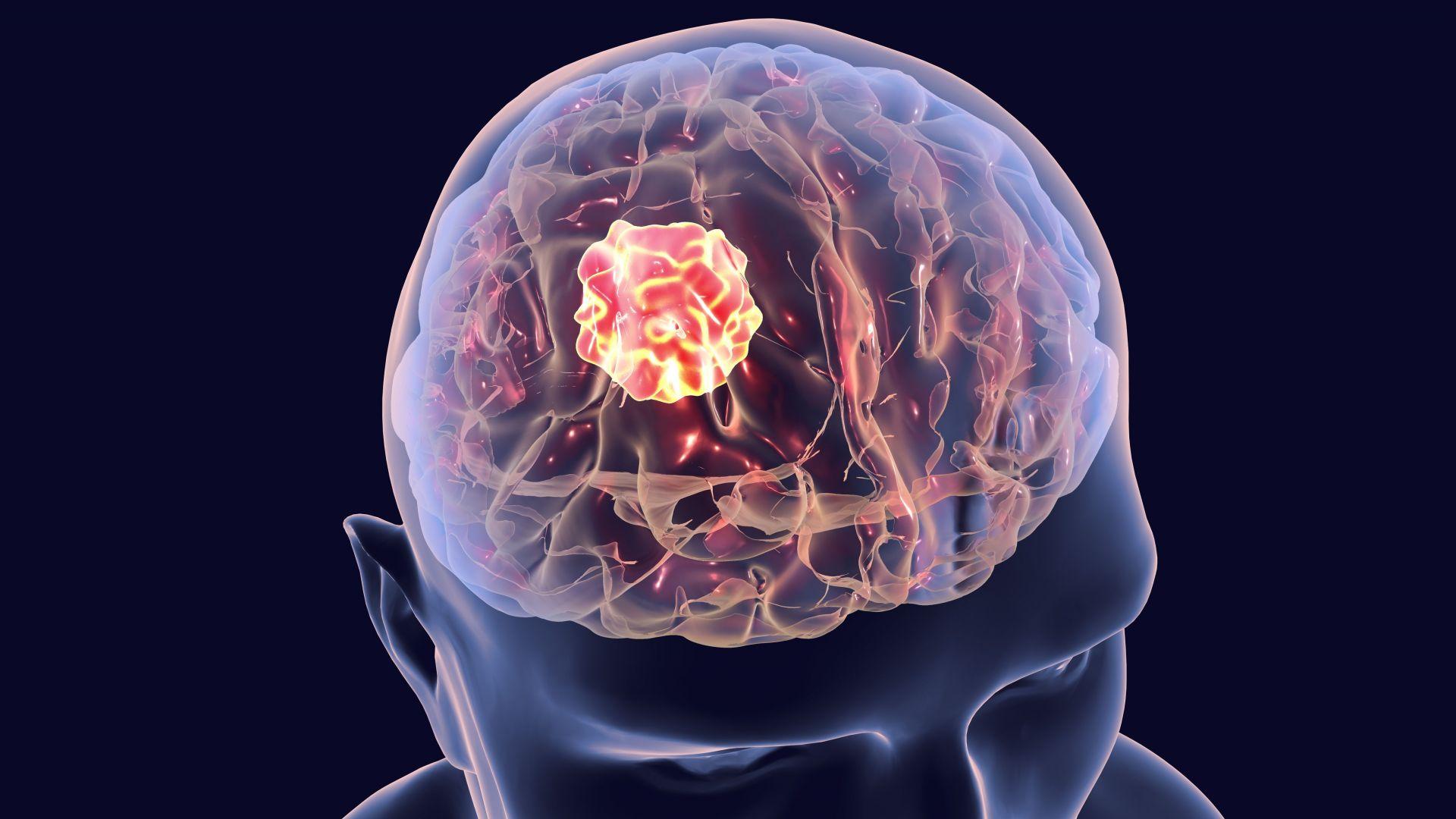 Руски учени предложиха ново лечение на мозъчен тумор