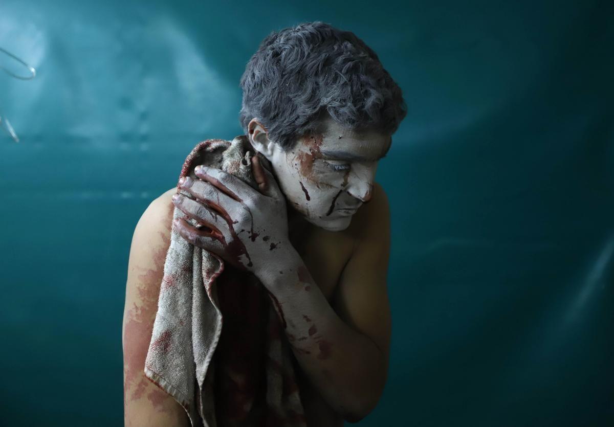 Ранен сирийски мъж изчаква лечение в импровизирана клиника по време на въздушни удари на сирийското правителство върху Замалка, бунтовническия анклав Източна Гута в покрайнините на Дамаск на 13 март