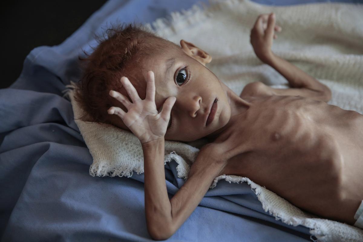 Силно недохранено момче почива на болнично легло в здравния център на Аслам в Хаджаха, Йемен, на 1 октомври