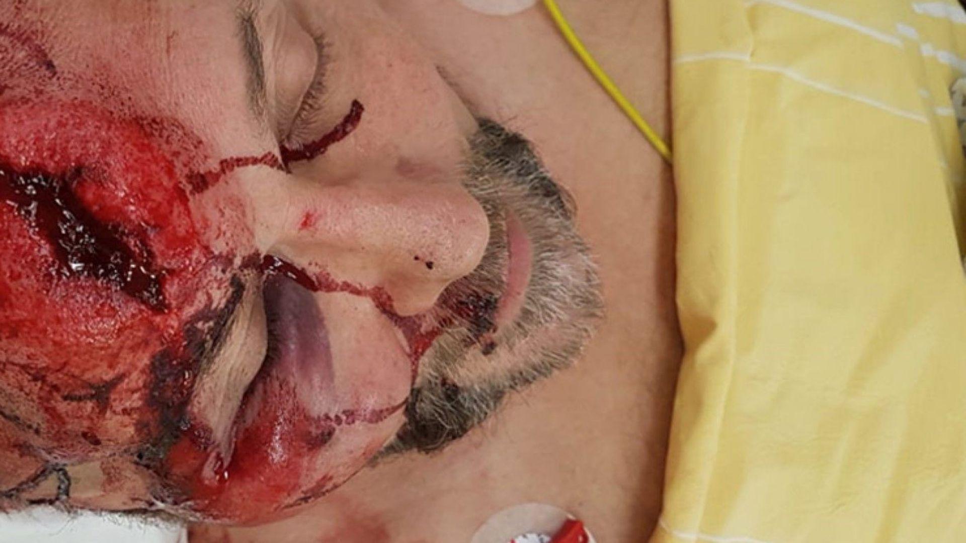 """Редактирана снимка на Франк Магниц в болничното легло след """"подлата, отвратителна атака"""""""
