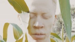Прозрачната красота на албиносите