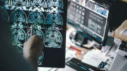 Пробив в борбата с Алцхаймер: Кръвен тест открива болестта 10 г. преди симптомите