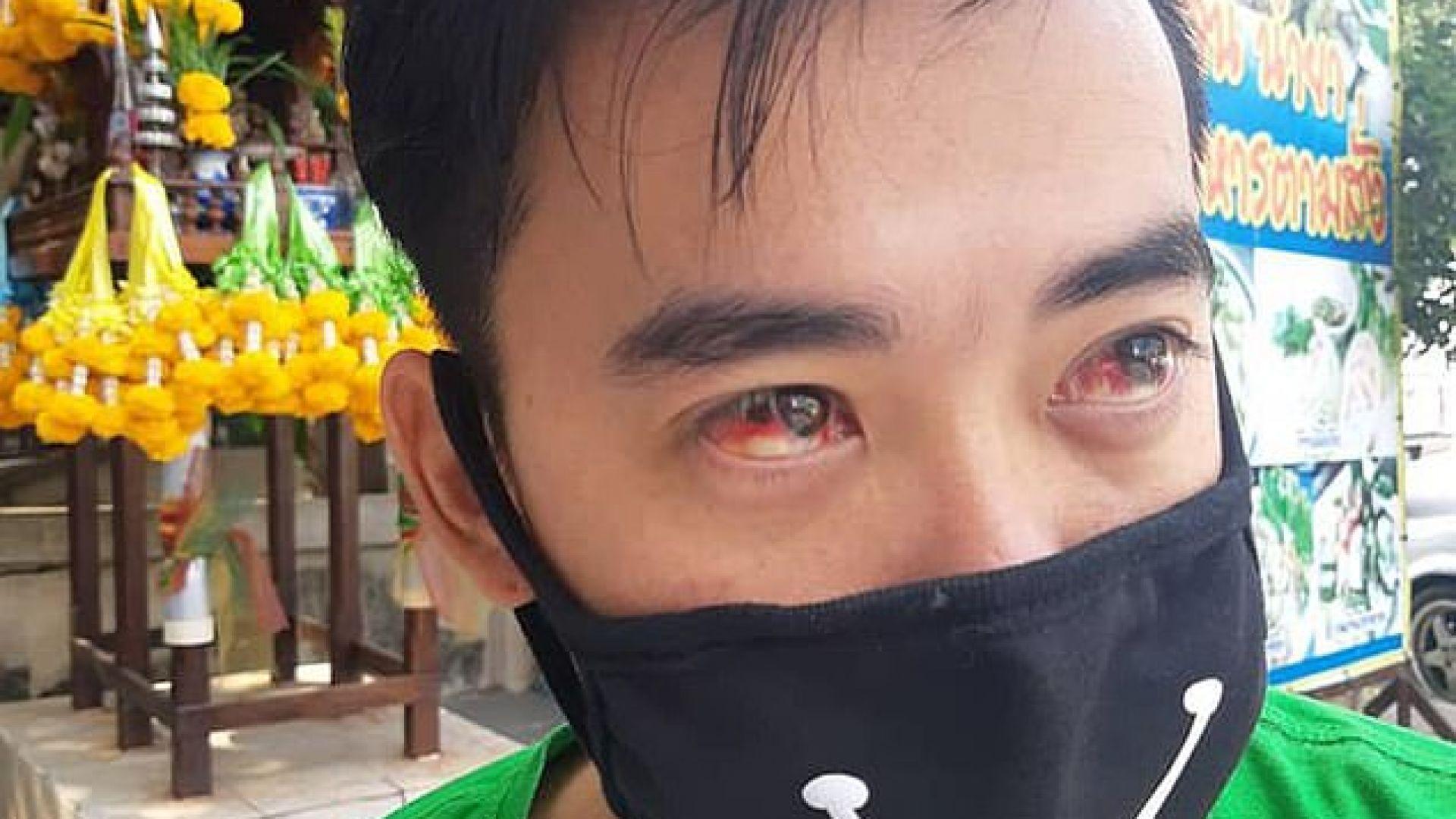 На някои от жителите на Банкок им тече кръв от очите заради мръсния въздух