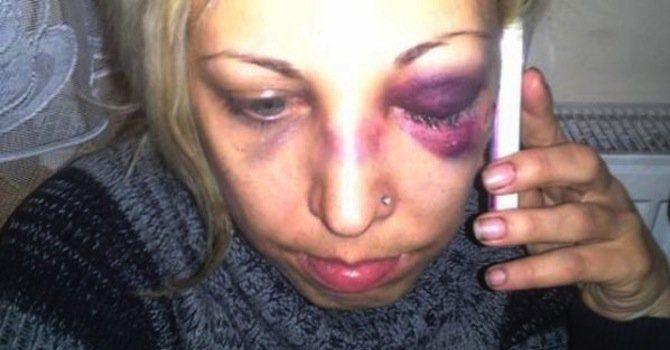 Добринка е била жестоко удряна в лицето, както свидетелстват кадри, направени след инцидента