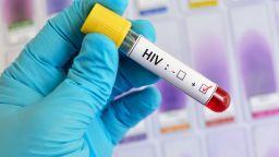183 души с ХИВ са регистрирани у нас тази година, най-много са между 30 и 39 г.