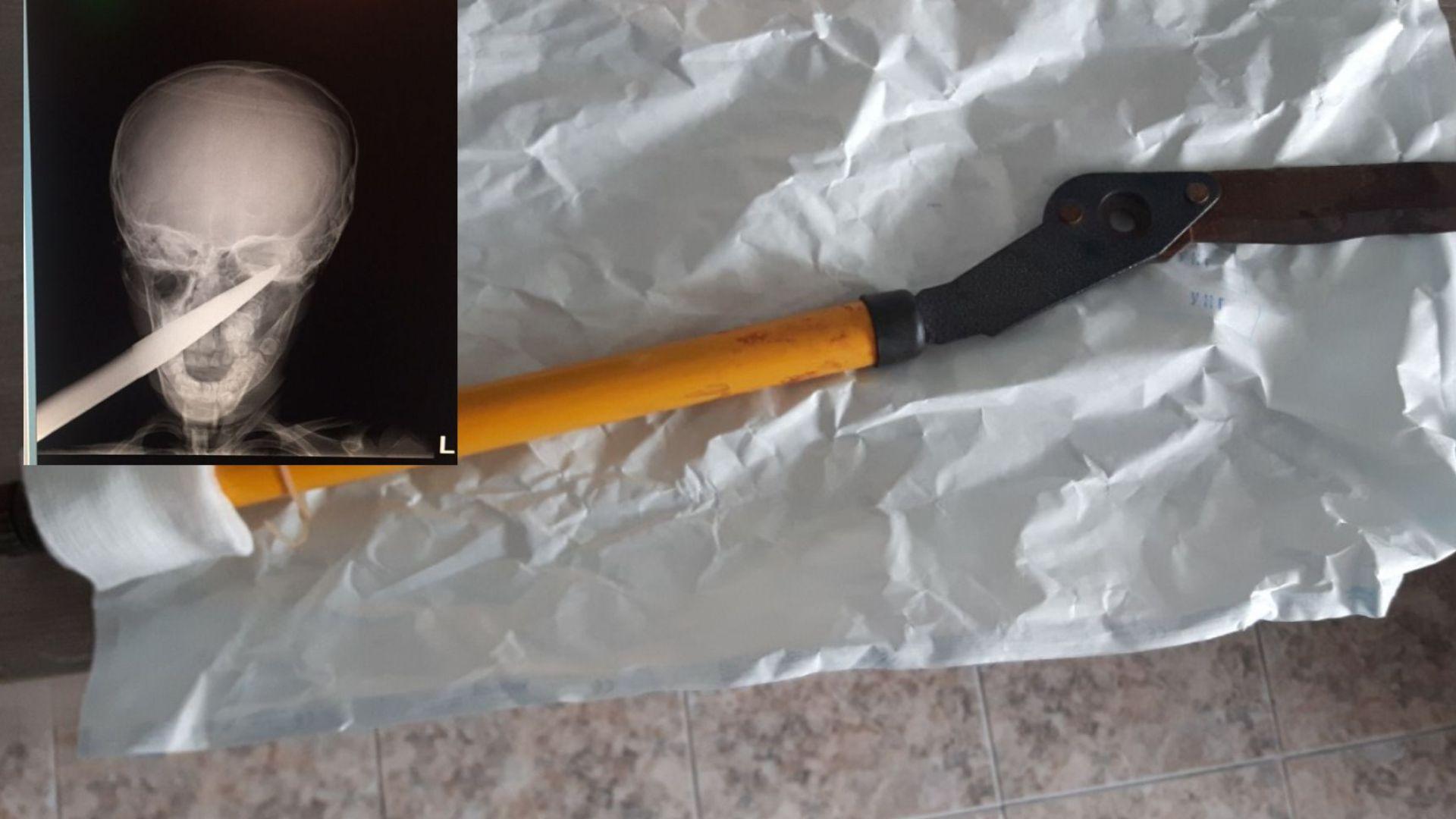 Спасиха дете със забита в главата градинска ножица (снимки 18+)