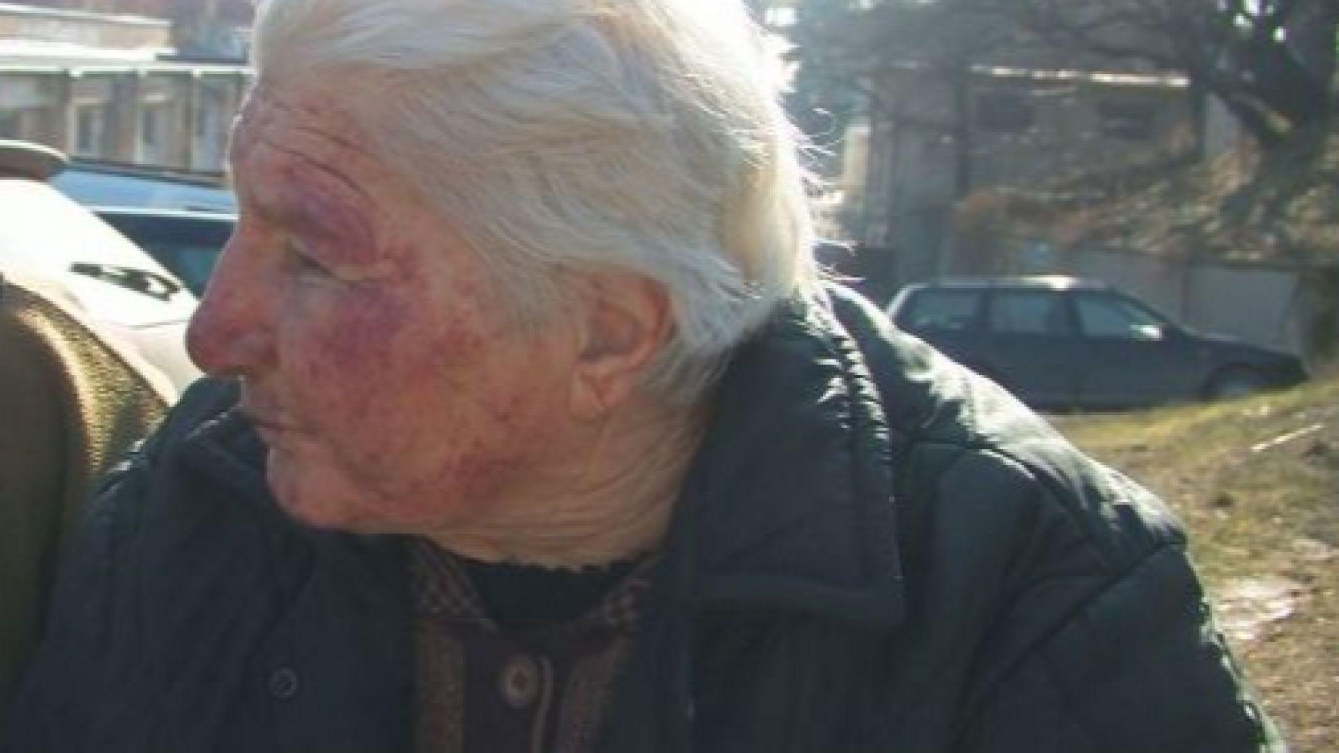 Следите от побоя вече са изличени, на възрастната жена никога няма да се освободи от страха
