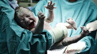 Командироват лекари в Ямбол, за да има отново раждания