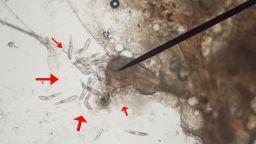 Извадиха над 50 кърлежа от главата на дете след разходка в софийския Южен парк