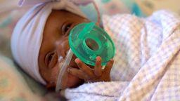 Най-малкото бебе в света - 245 г, се е родило в Калифорния (снимки, видео)