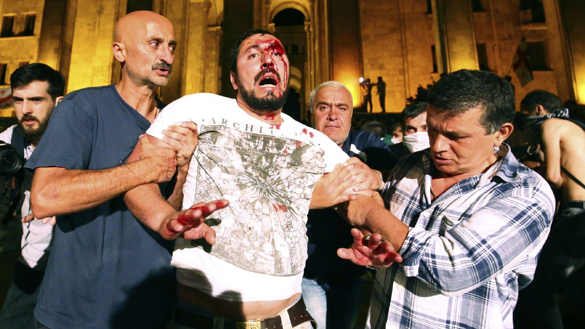 Десетки ранени при атаката срещу парламента в Грузия (снимки, видео)