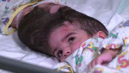 Британски хирурзи разделиха сиамски близначки, свързани в главите (видео)