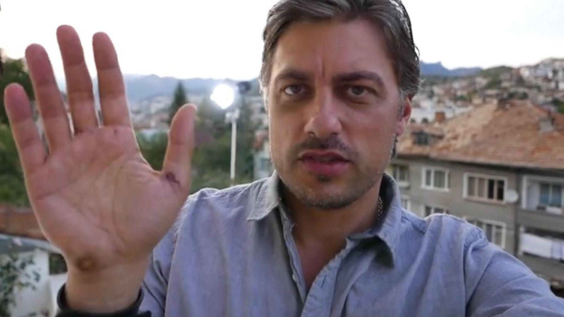 Владо Карамазов с шевове на ръката след инцидент с нож (видео)