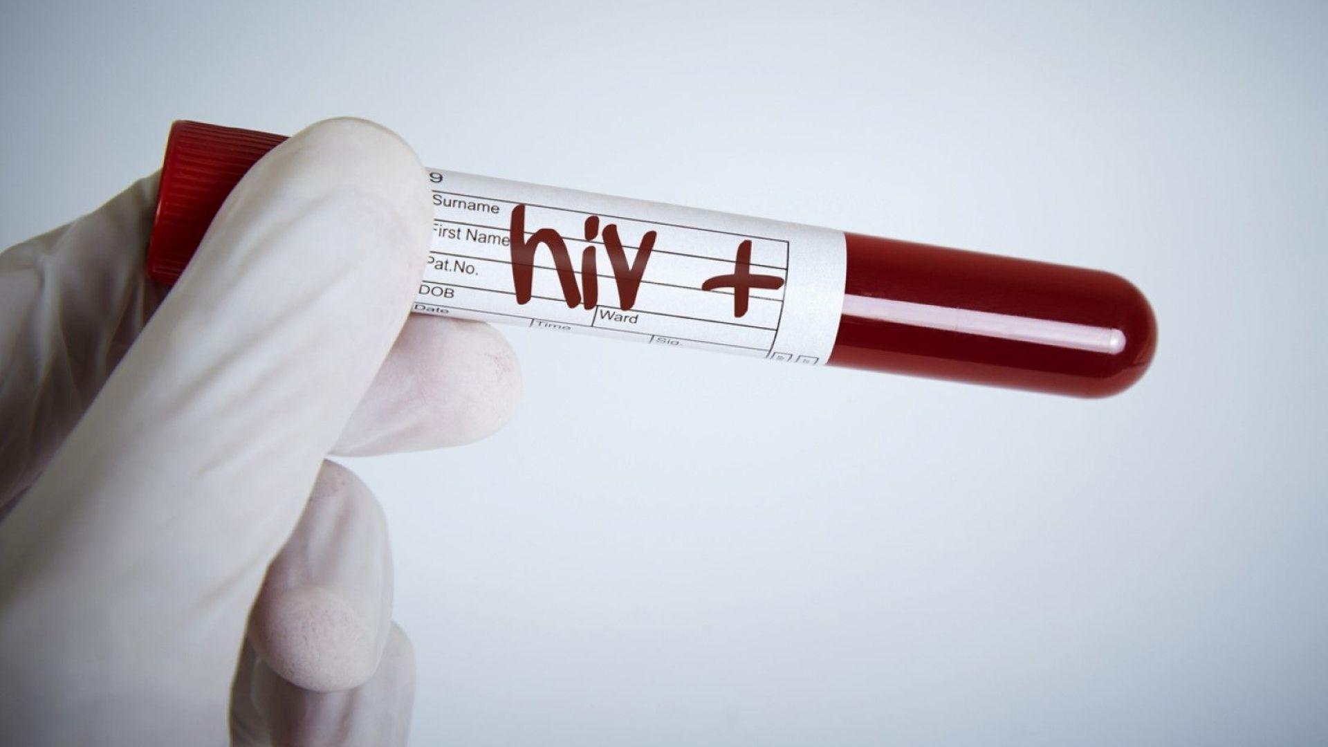 Учени са открили съединение, което може да унищожи  вируса ХИВ