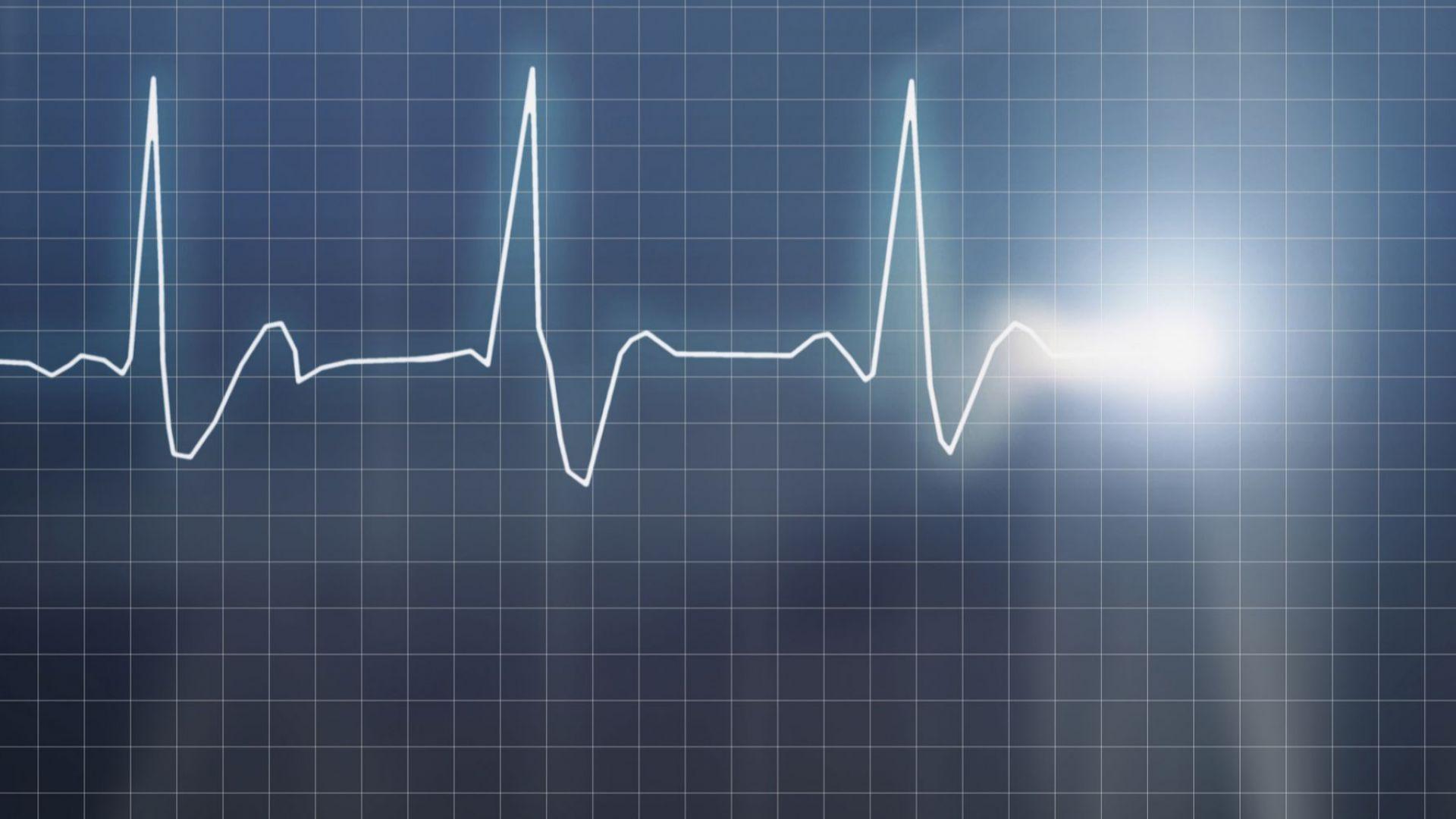 Съвместна кампания за профилактика на исхемичната болест на сърцето и