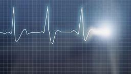 Инфаркт е причина за смъртта на китаеца в Банско
