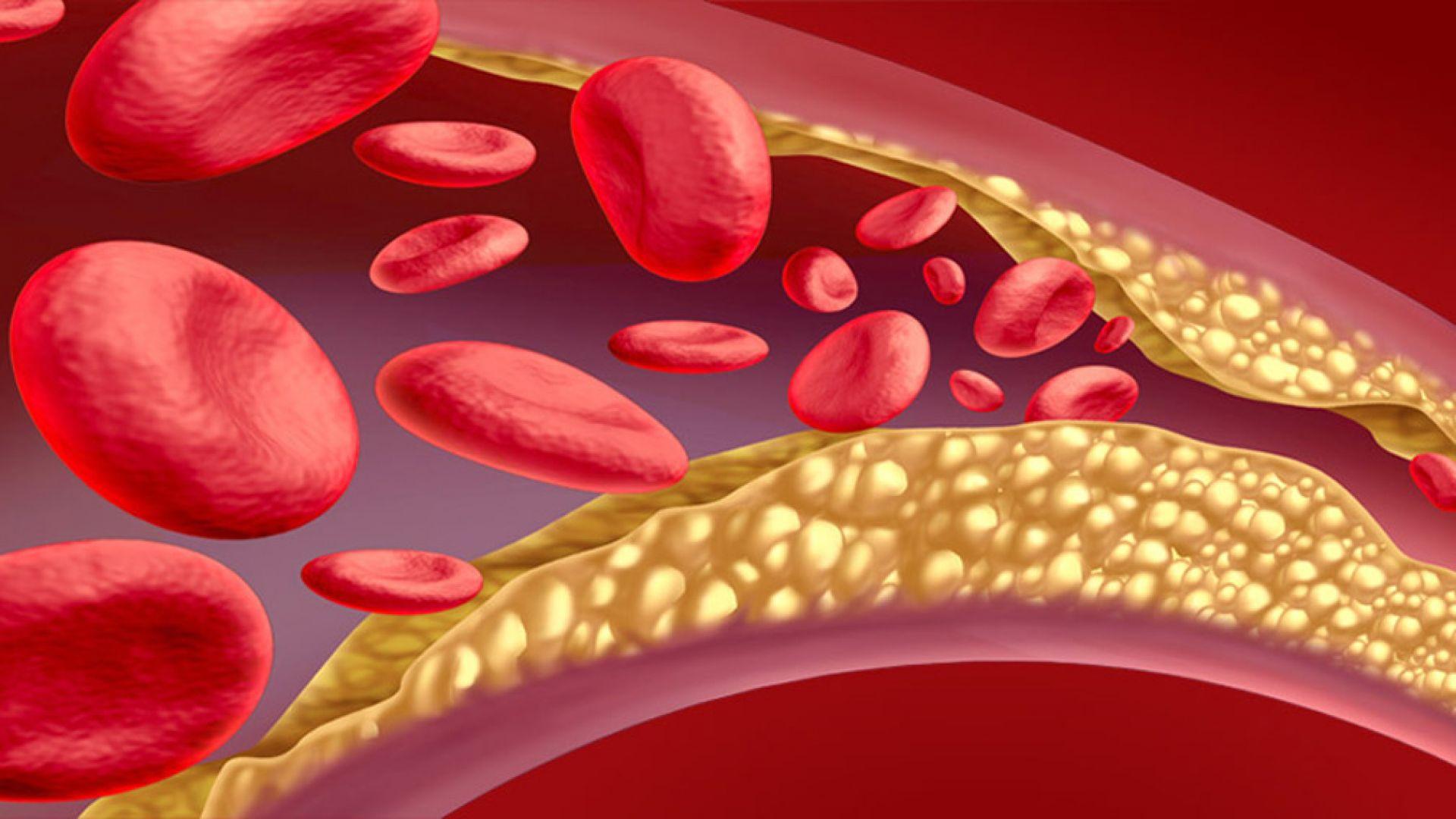 Шокиращо, но факт - лекарите предпочитат да си оправят холестерола