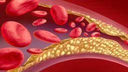 Как лекарите си свалят холестерола?