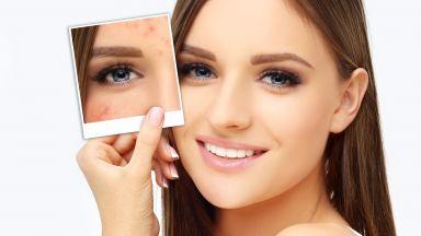 Как да се погрижим за проблемната кожа