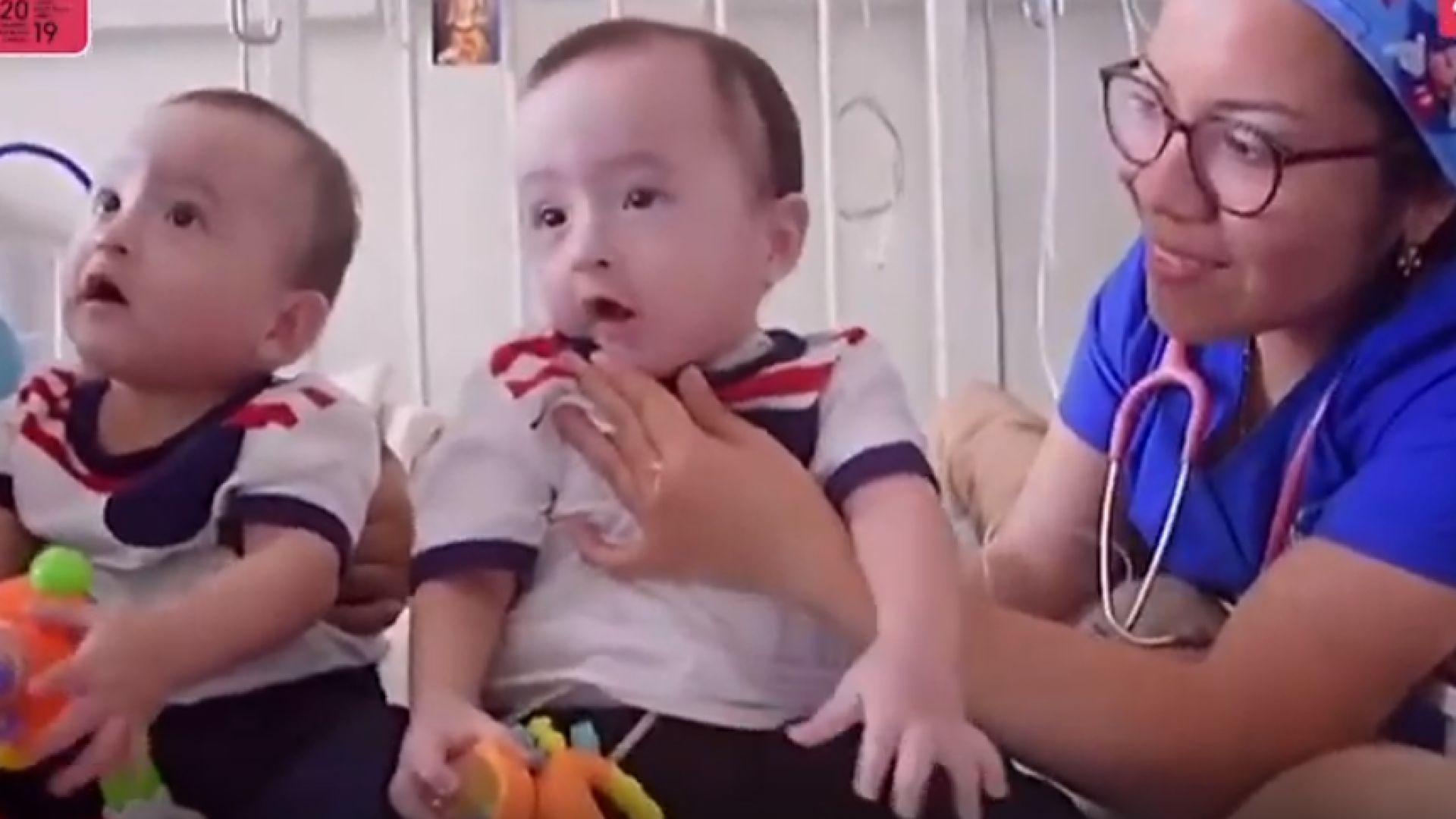 Сиамските близнаци от Перу Едгар и Доминик се прибраха у