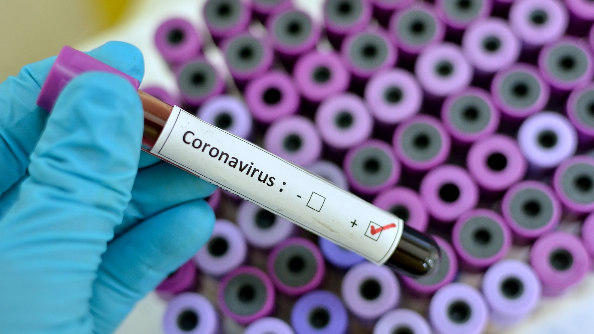Китай предаде на Русия генома на коронавируса, а Австралия го отгледа лабораторно