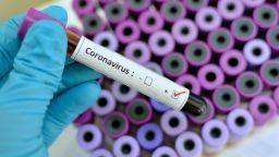Външно съветва да ограничим пътуванията до Италия заради случаите с коронавирус